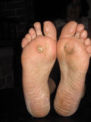 kutil telapak kaki | obat kutil mujarap