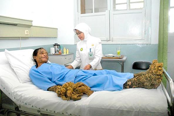 Seorang perawat memeriksa Dede (38) pasien penyakit kulit yang dikenal sebagai manusia pohon,  di Ruang Bougenville, RS Hasan Sadikin, Bandung. Minggu (25/11).